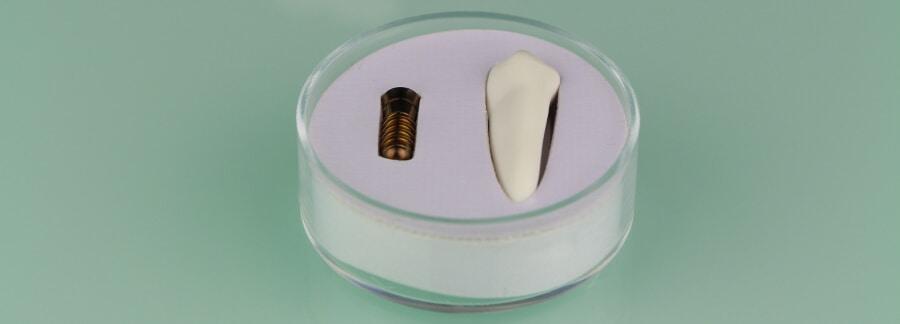 Zahnimplantat und Zahn
