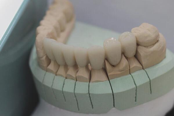 Zahnersatz aus Ungarn